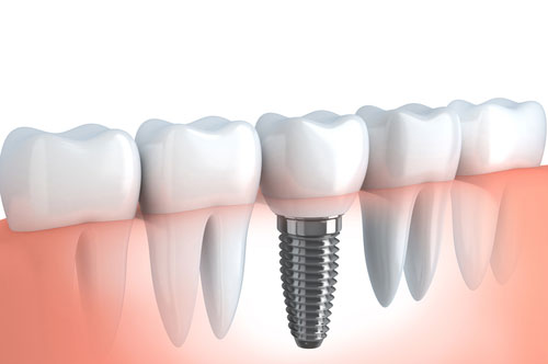 dental_implants_2